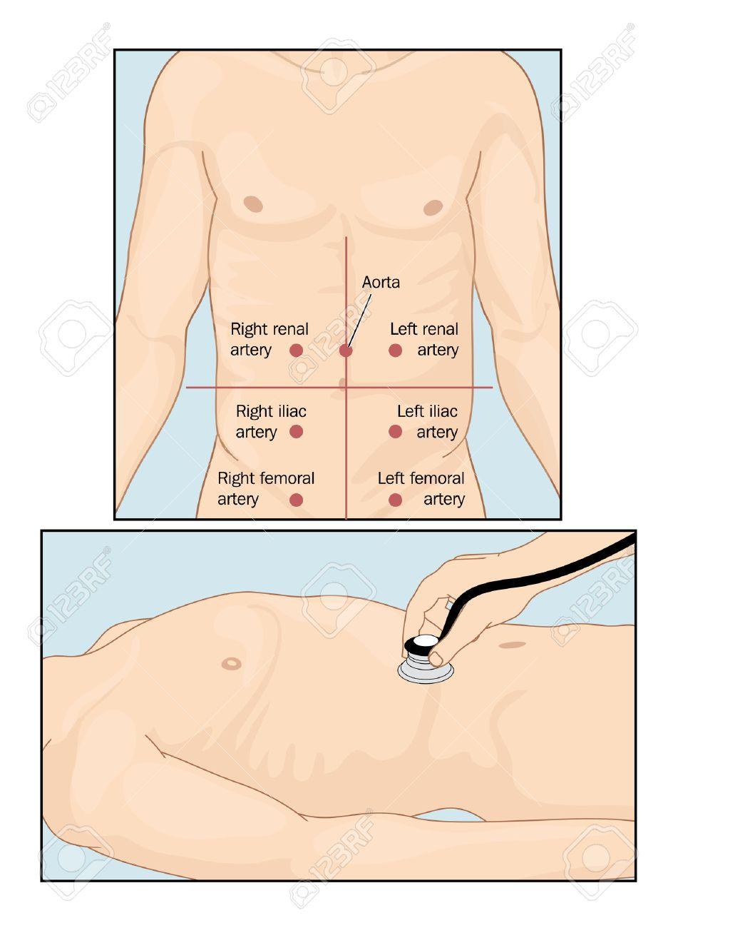 Seiten Der Bauchgefäßgeräusche Beim Durchführen Bauch Auskultation ...