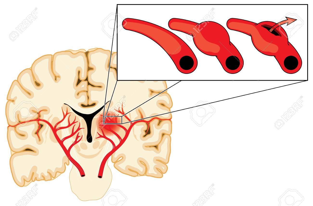 Blutgefäße Im Gehirn, Prall Und Reißen Aufgrund Eines Aneurysmas ...