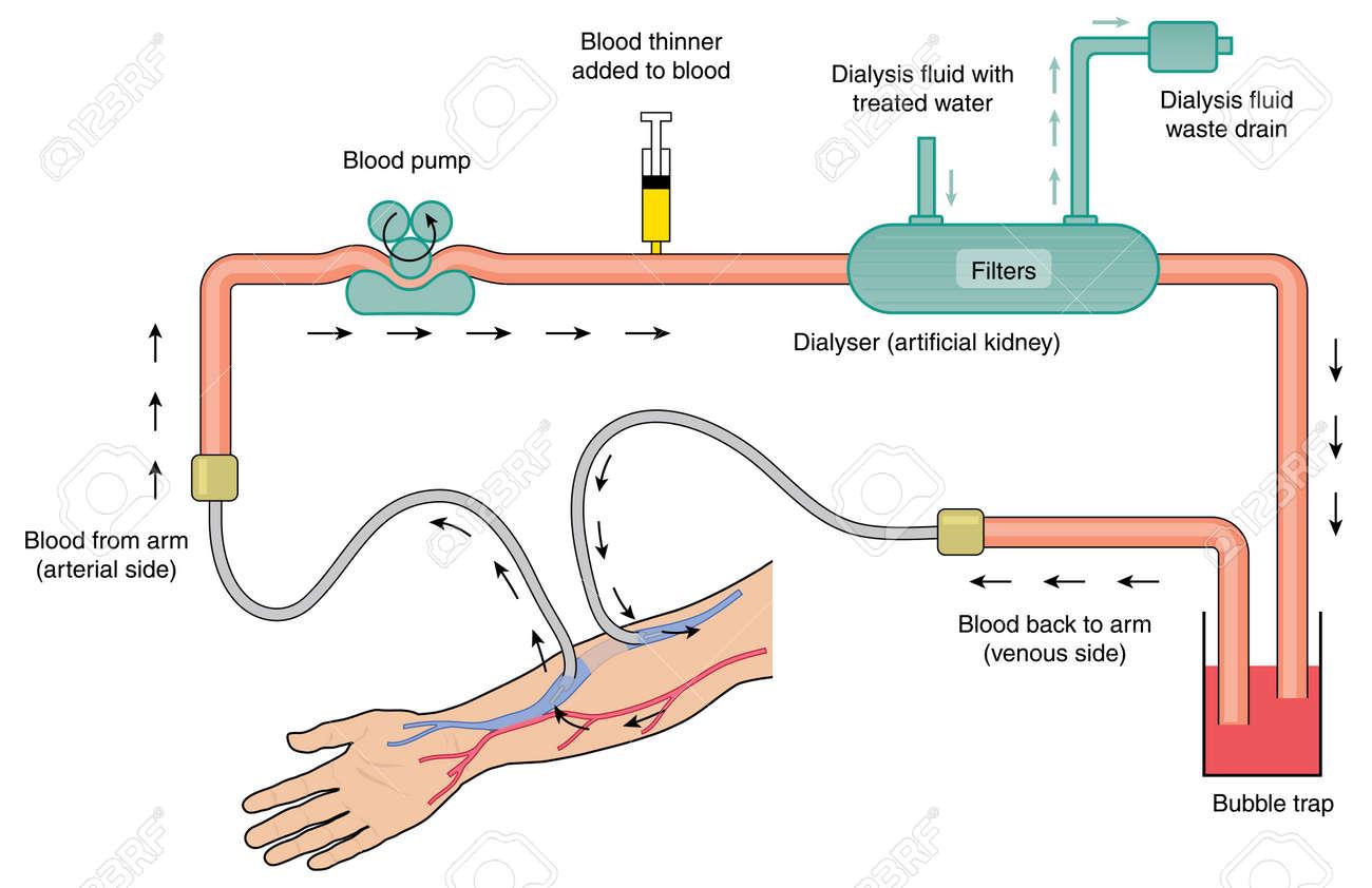 Blutfluss Durch Dialyse-Maschine, Von Arteriellem Blut, Durch Die ...