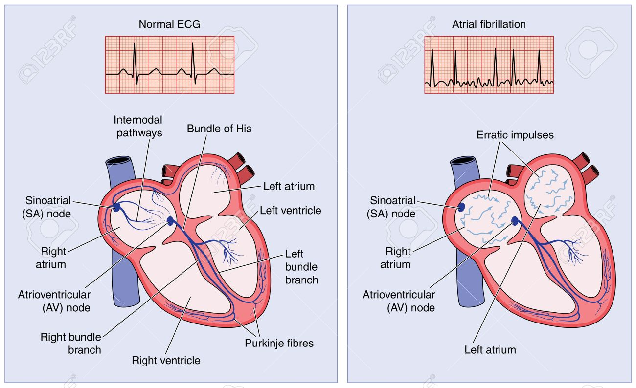 Diagram Of Heart Electrical Conduction Fileelectric Bicycle Diagramjpg Wikimedia Commons Drawing The System Showing Normal