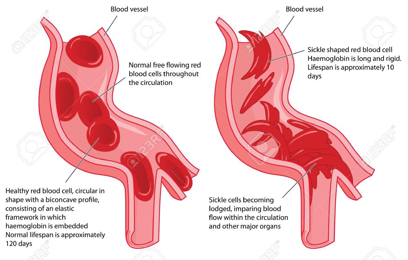 Wunderbar Anatomie Und Physiologie Der Roten Blutkörperchen Ideen ...