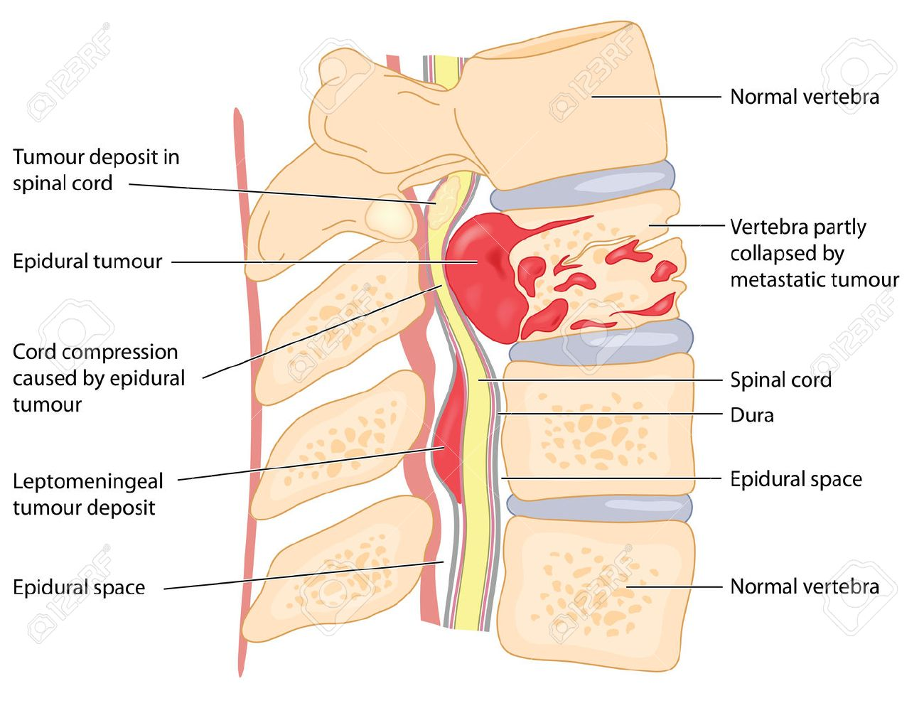 Primary and secondary tumours of the vertebrae and spinal cord primary and secondary tumours of the vertebrae and spinal cord showing cord compression and collapsed ccuart Choice Image