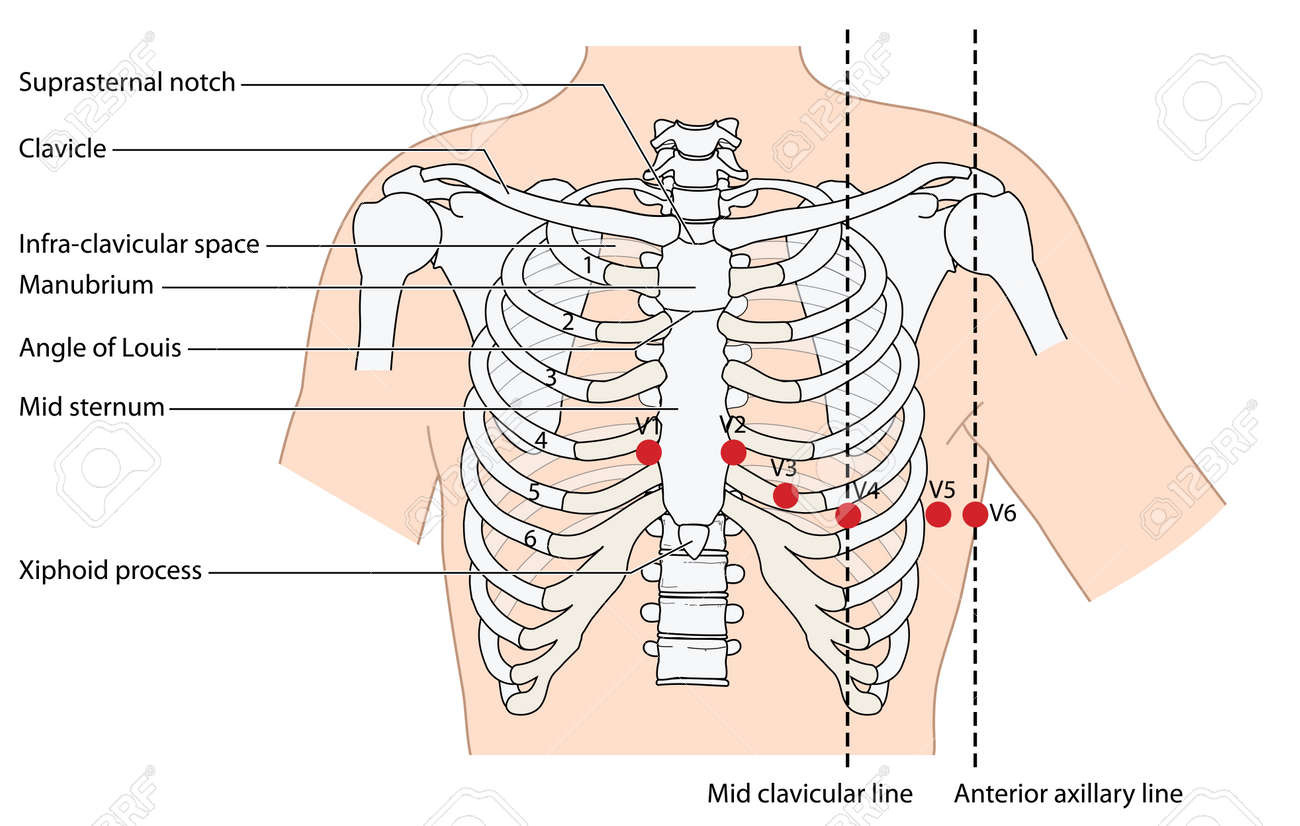 Placement Of Ecg Ekg Leads Showing The Ribs And Sternum The