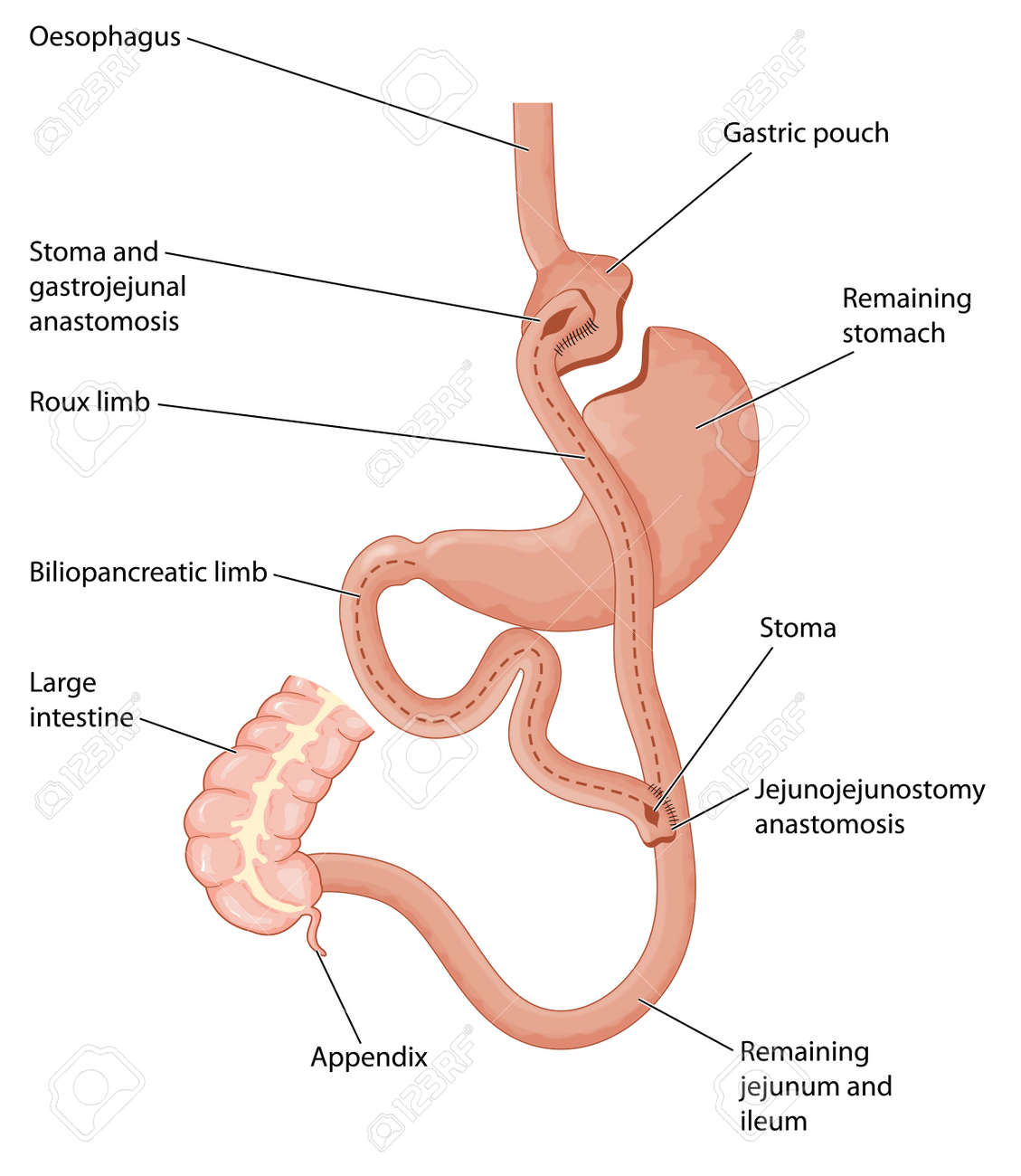Roux-en-Y Gastric Bypass, Showing A Gastric Pouch And Gastrojejunal ...