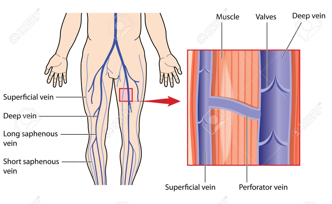 Leg Veins, With Detail Of Deep And Superficial Veins In The Leg ...