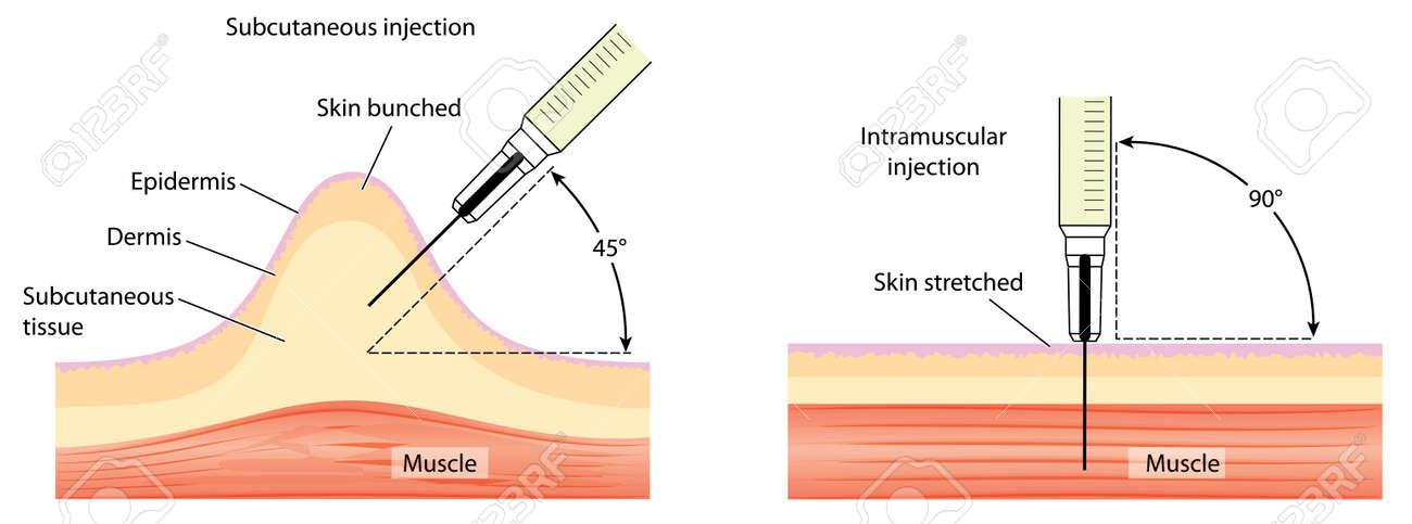 Diferentes Métodos Para La Inyección De La Piel Y El Músculo, Que ...