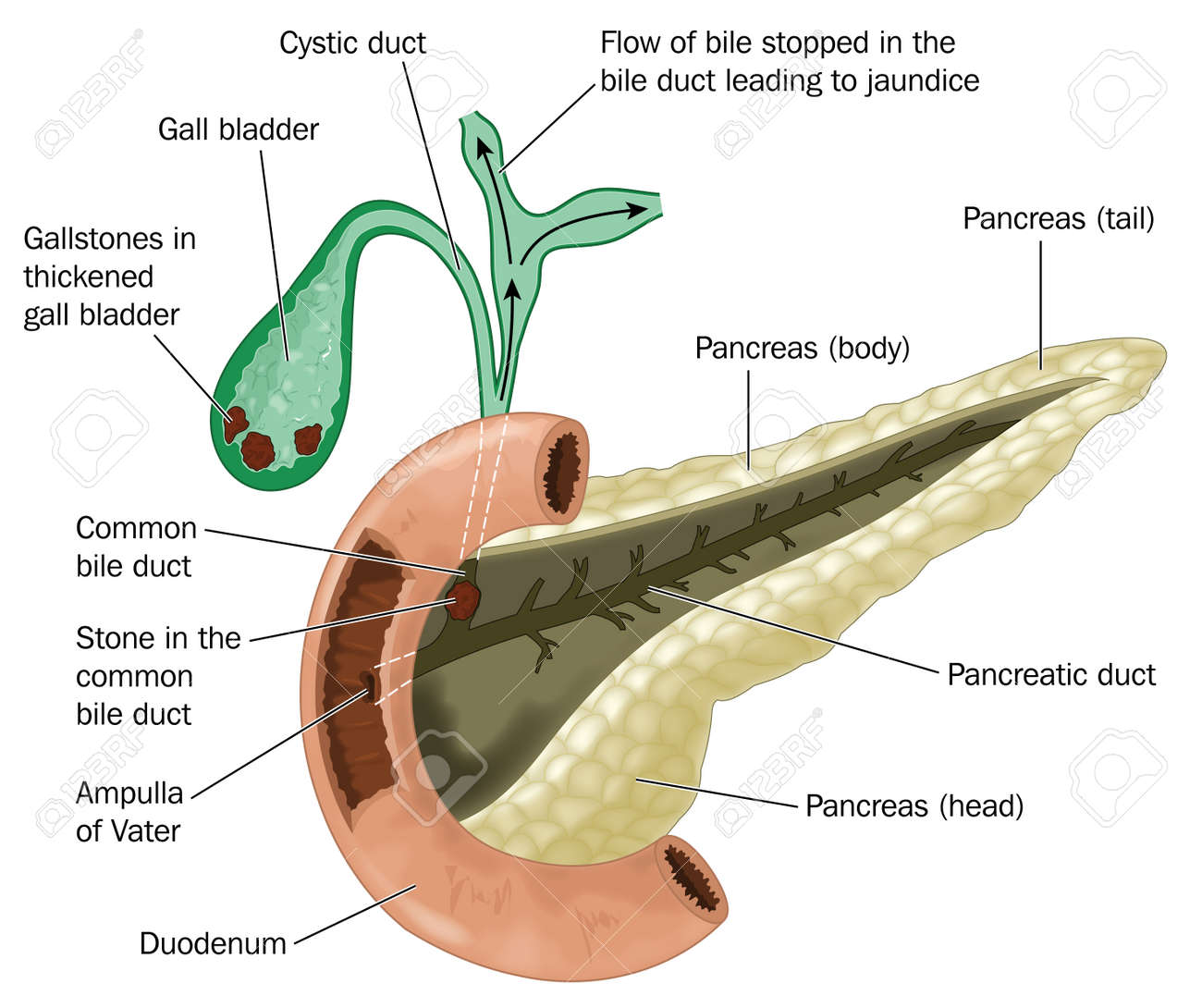 99 Common Bile Duct Stock Illustrations Cliparts And Royalty Free