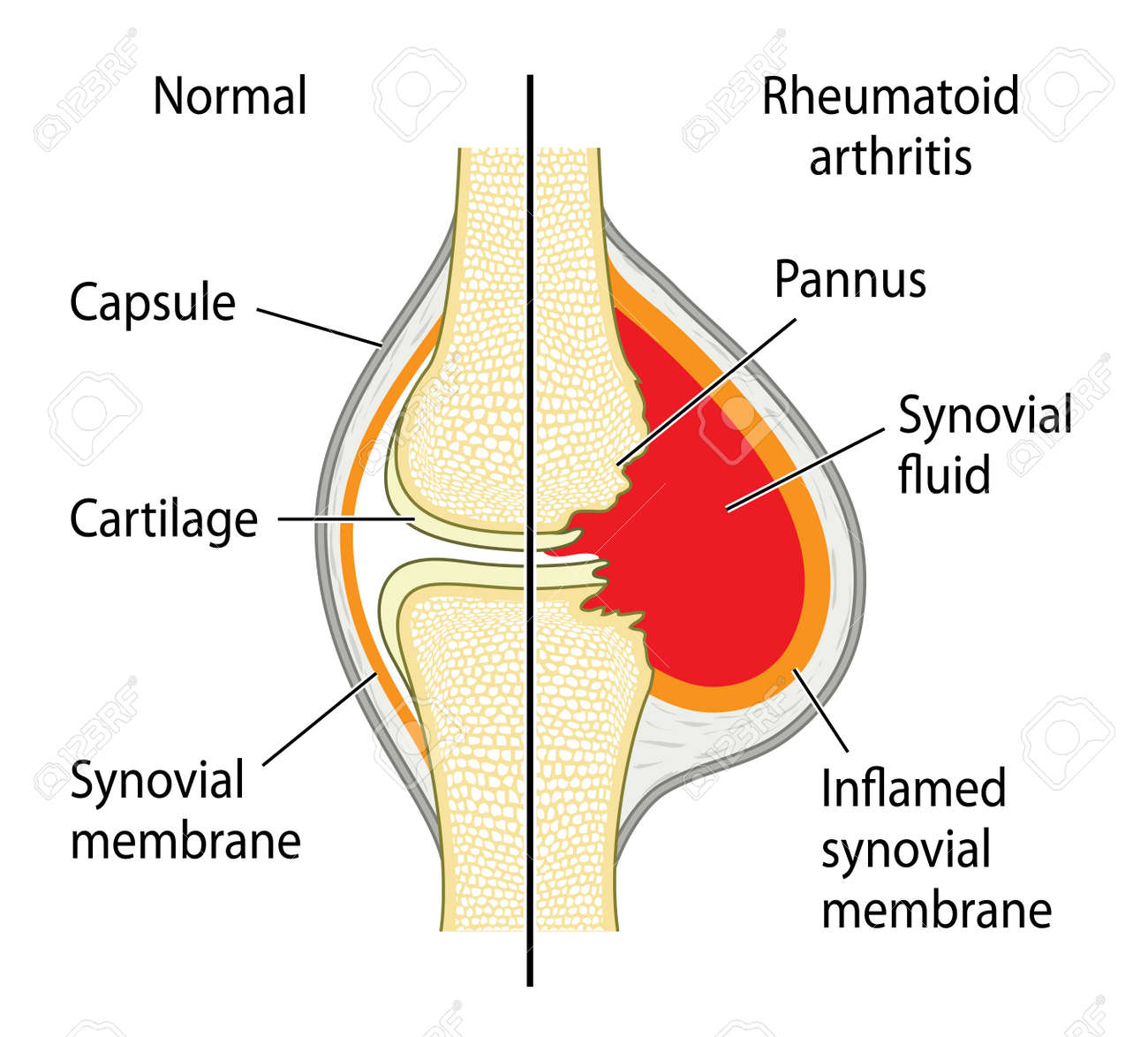 A Normal Knee Joint And The Changes Due To Rheumatoid Arthritis ...