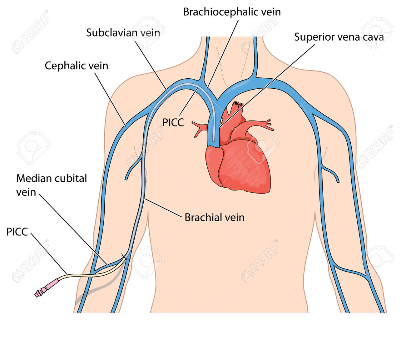 Catheter Line (PICC) Inserted Into The Superior Vena Cava From ...