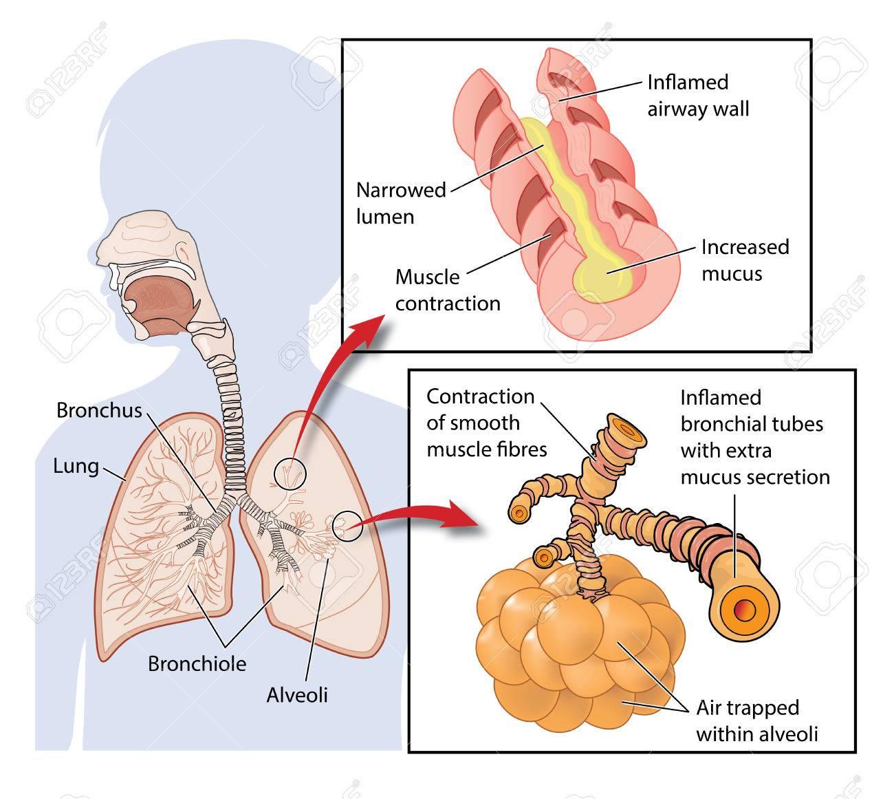 Querschnitt Durch Die Lunge Zeigt Entzündete Atemwege Und Gefangene ...