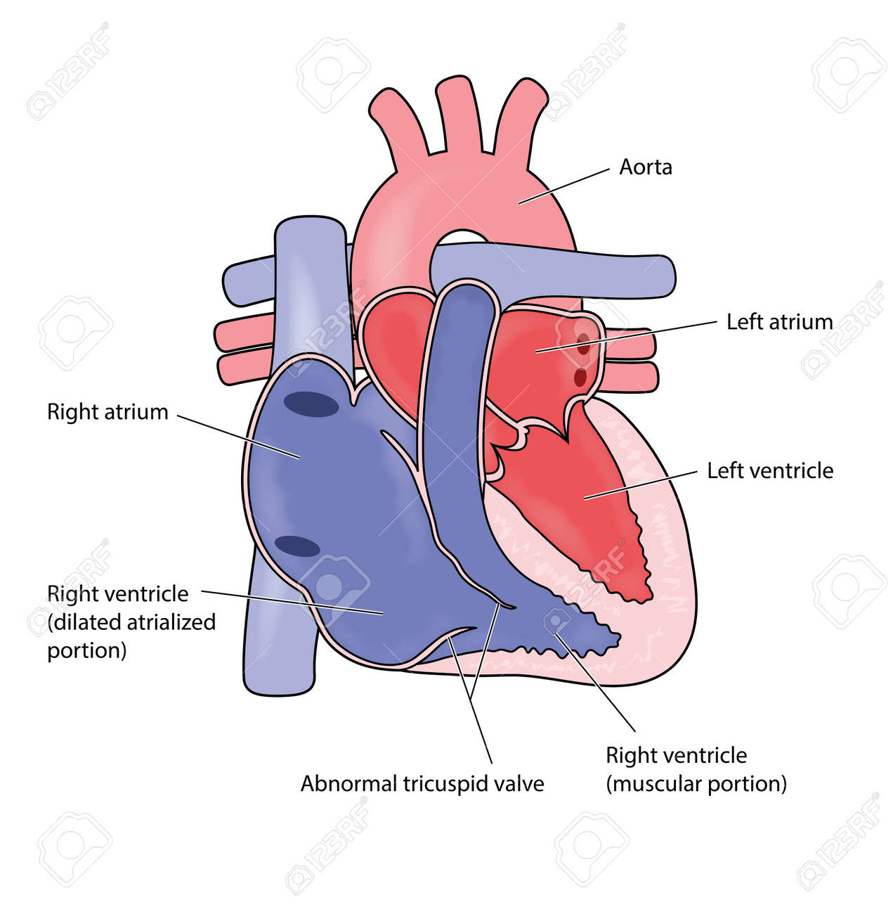 Heart Showing Ebsteins Heart Anomaly With Enlarged Right Atrium
