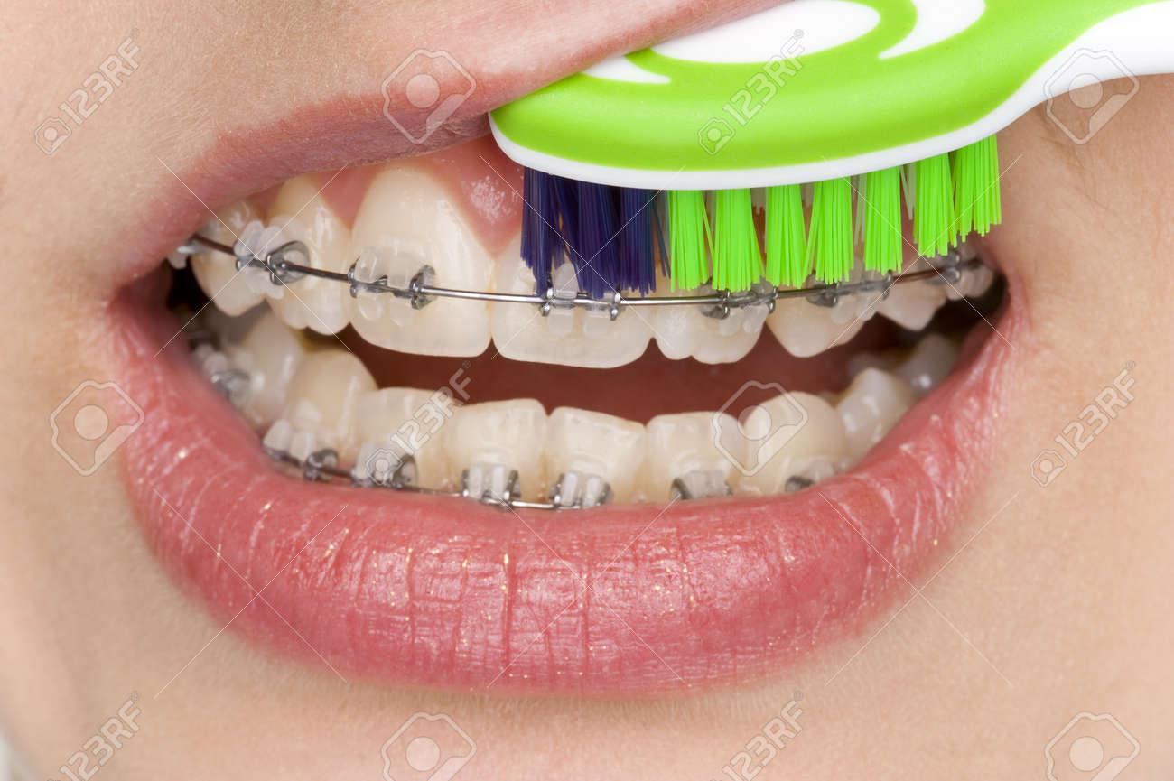 oral hygiene Stock Photo - 13366695