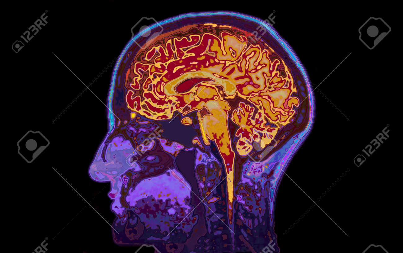 MRI Image Of Head Showing Brain Stock Photo, Picture And Royalty ...
