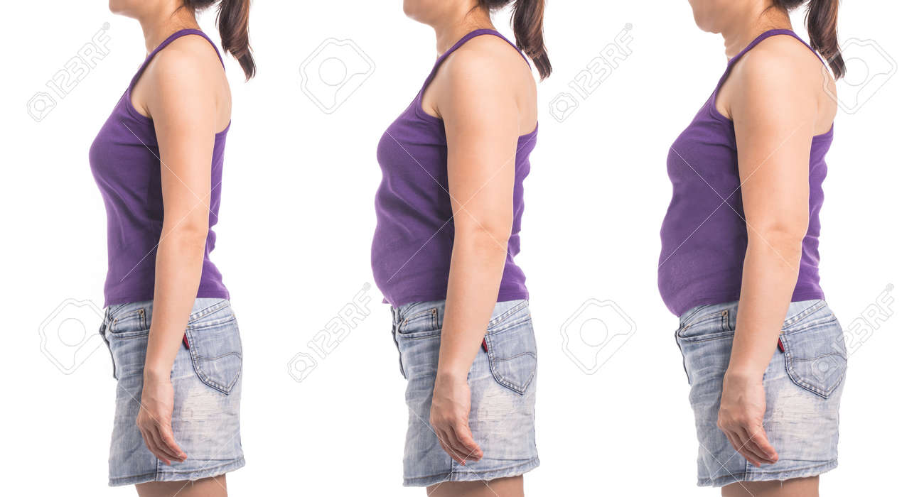 before and after weight loss woman for diet and healthy slim shape with white background. - 83887267