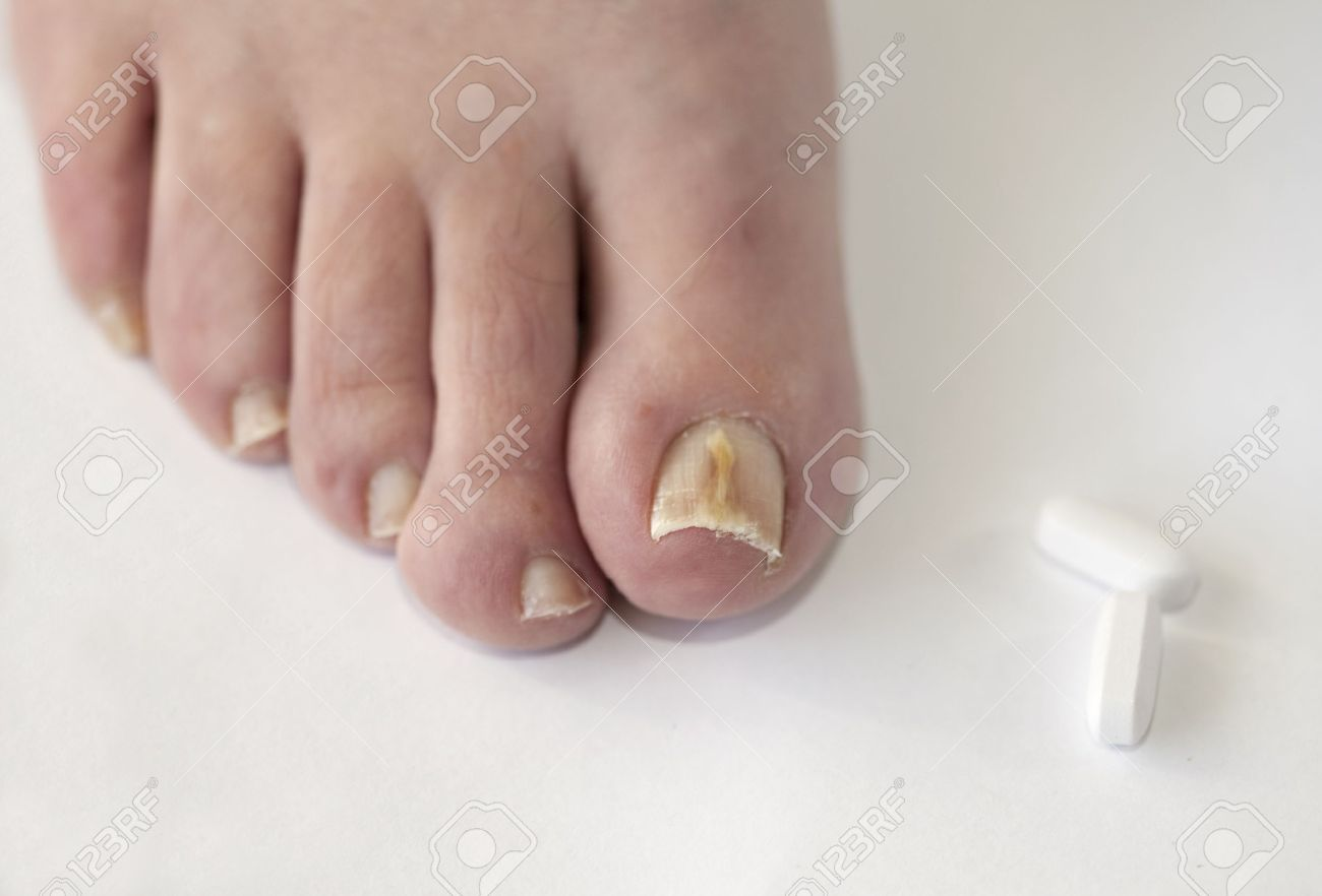 Foot With Fungal Toe Nail Infection Stock Photo, Picture And Royalty ...