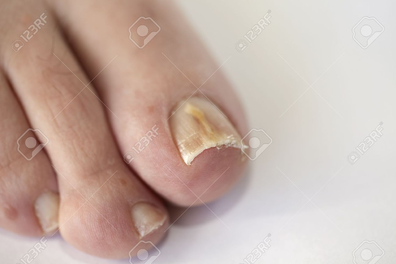 Foot With Fungal Toe Nail Infection Stock Photo, Picture And ...