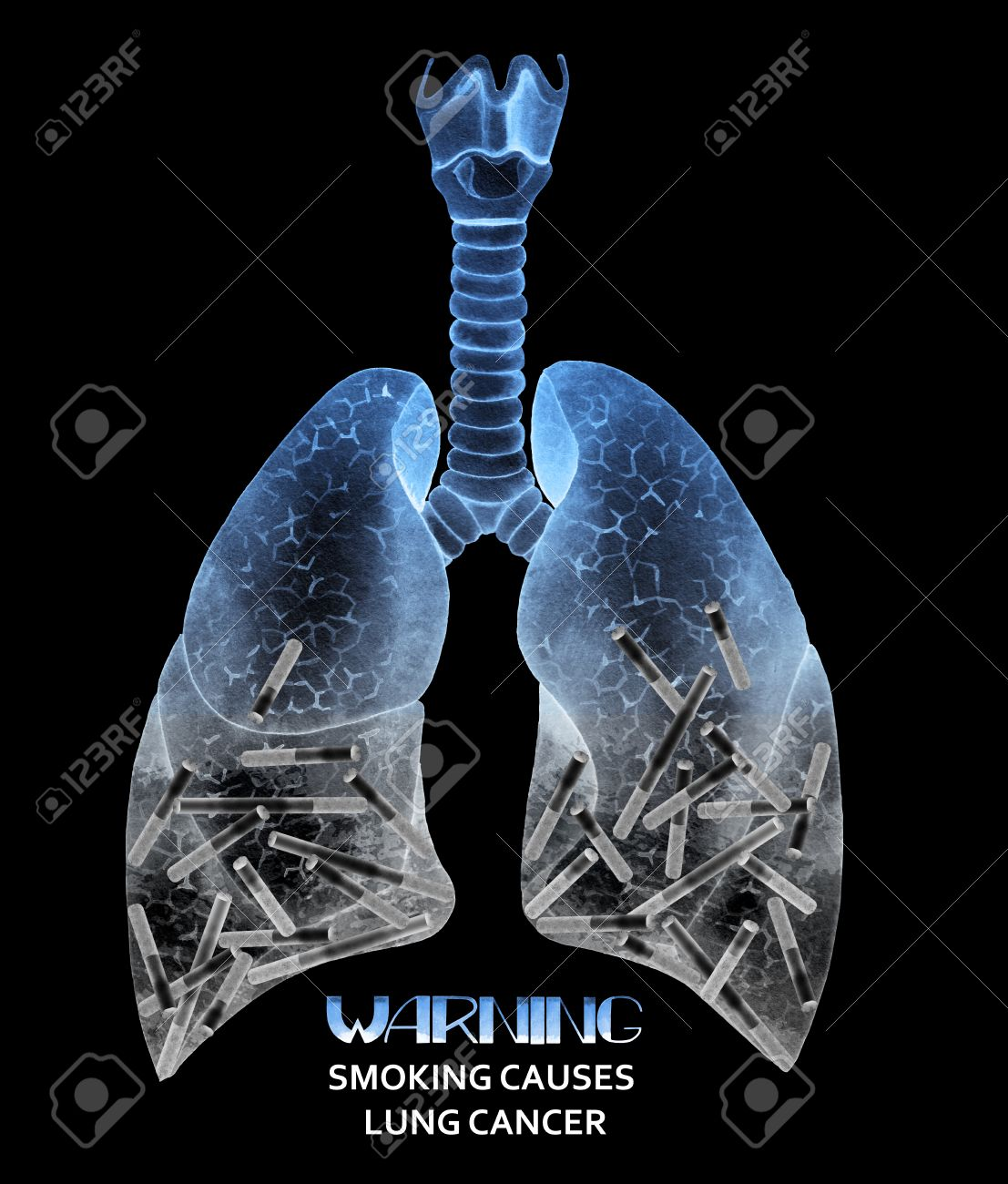 Watercolor Lungs Full Of Cigarettes. Warning. Smoking Causes.. Stock ...