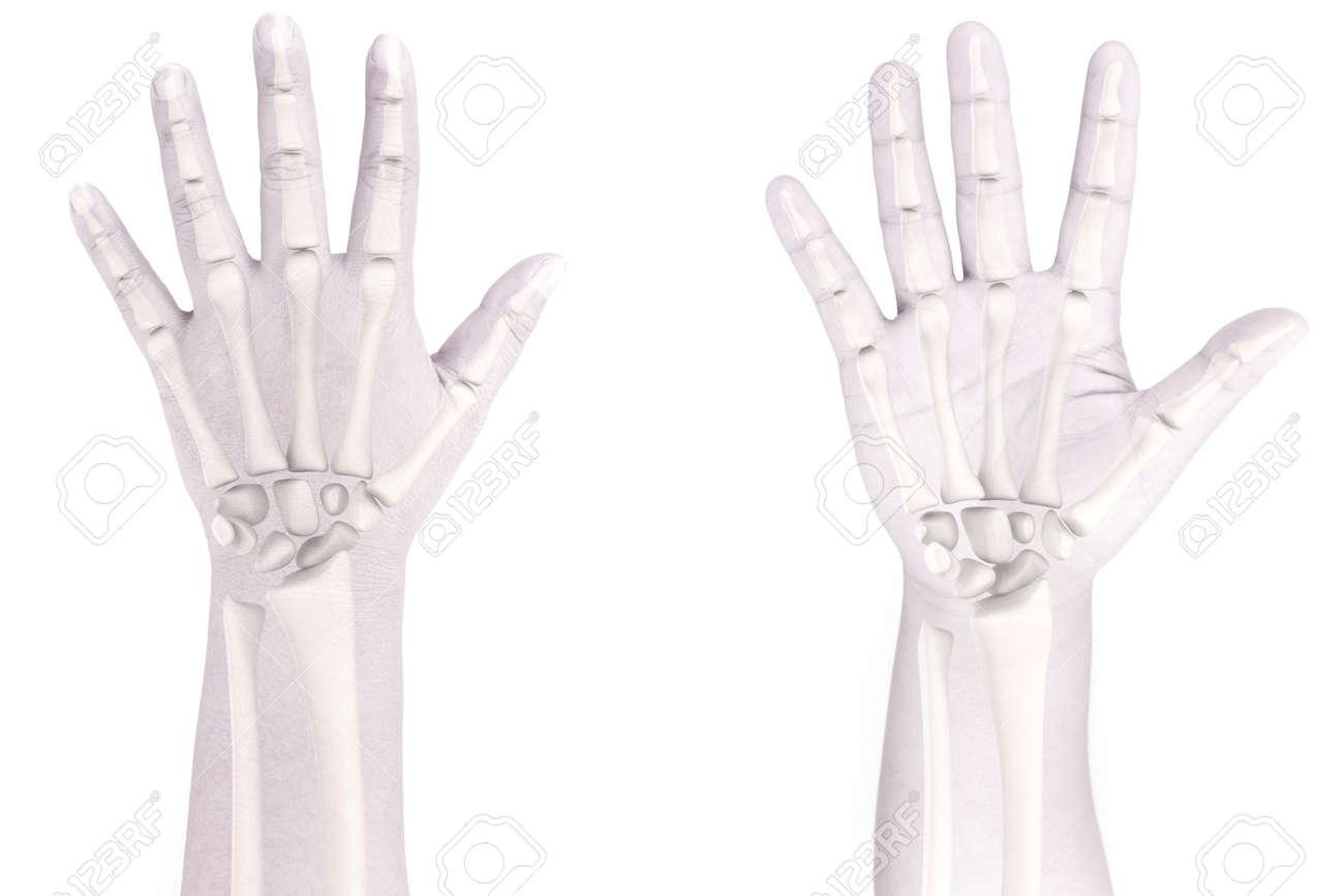 Hand Knochen Weißen Hintergrund Lizenzfreie Fotos, Bilder Und Stock ...