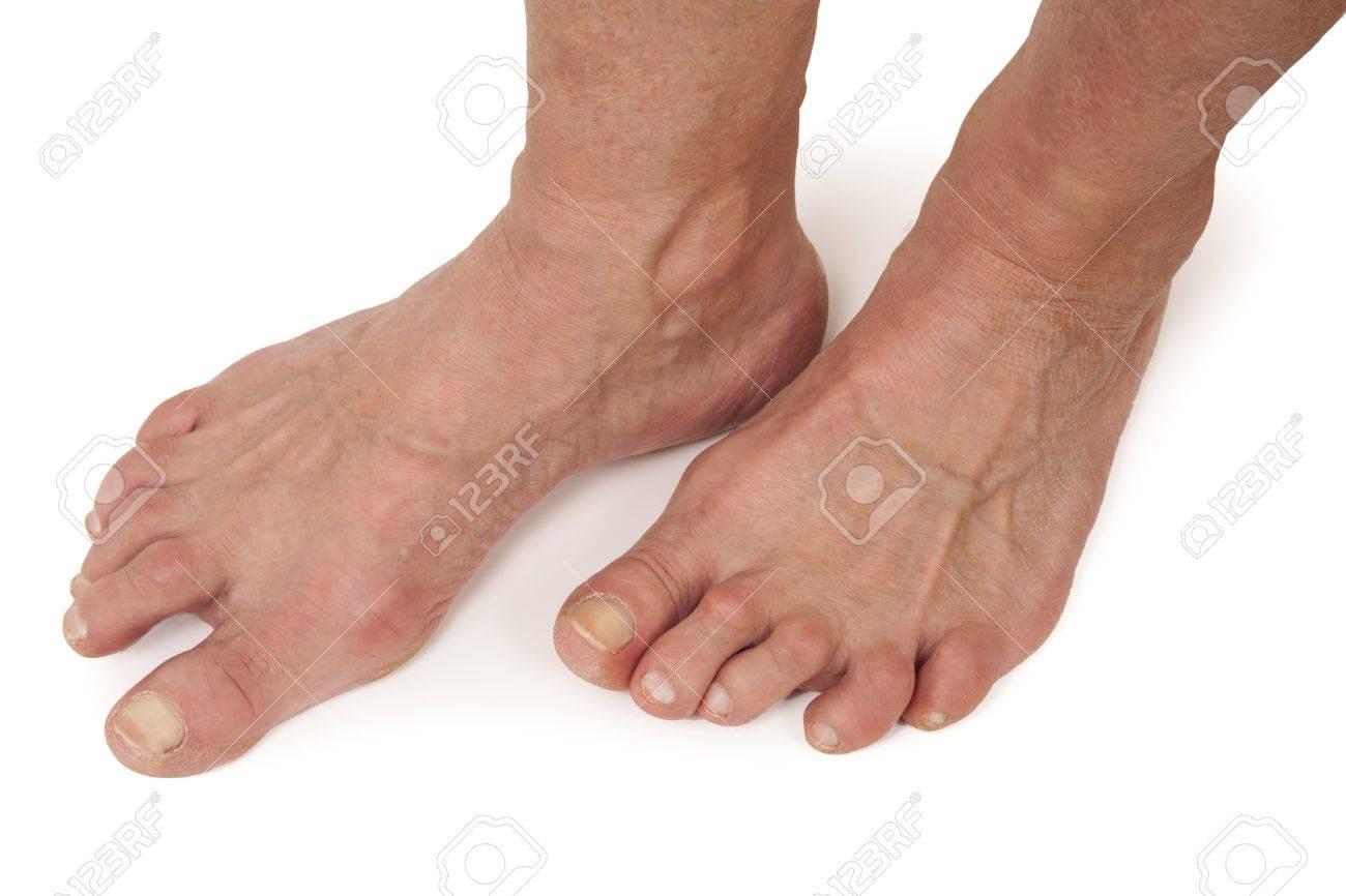 arthrite des pieds