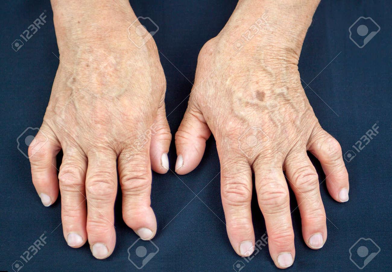 artritis handen