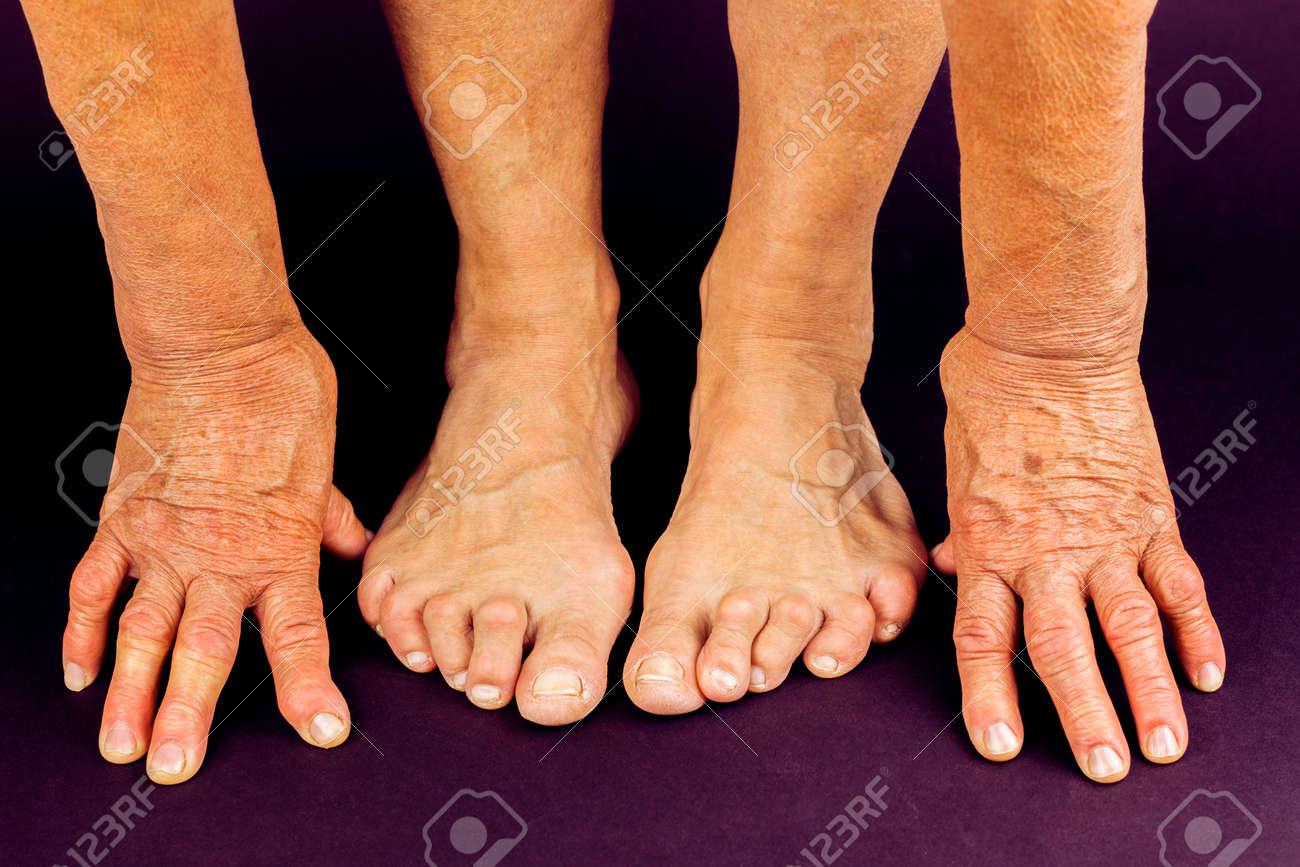 Artrite alle mani (artrite reumatoide)