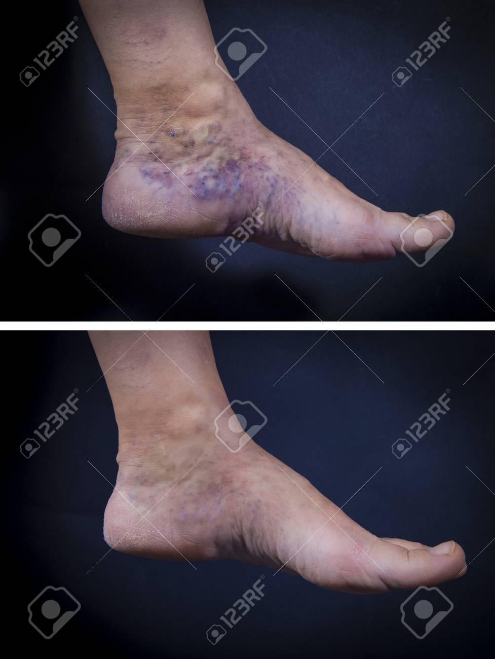 retetele populare care au ajutat din varicoză cum să eliminați umflarea pe picior varicoză
