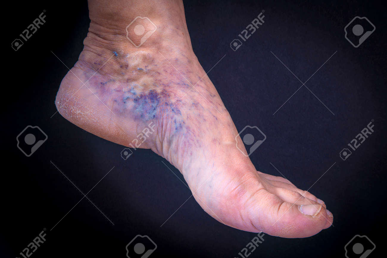 Adult Woman Foot With Varicose Veins On Dark Background Stock Photo