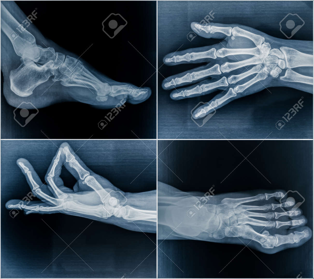 50 year old woman's x-ray scans from hands and feet - 51679855