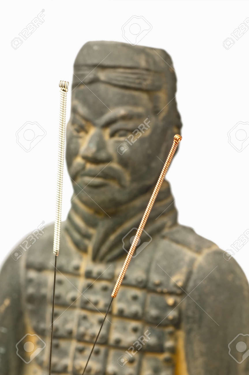 acupuncture needles with chinese antique soldier Stock Photo - 14055160