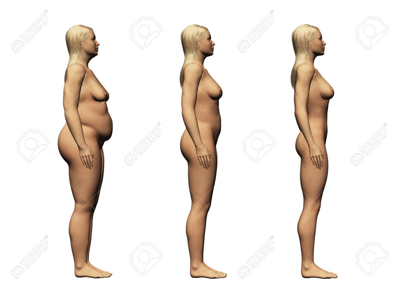 weight loss mason ohio