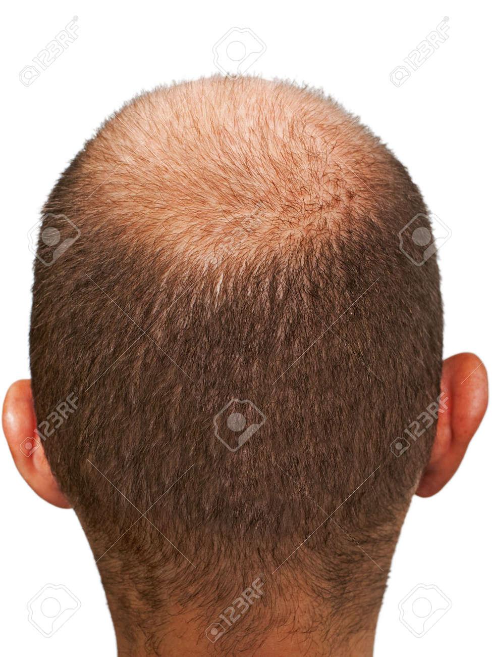 Шаблоны для стрижки волос на голове