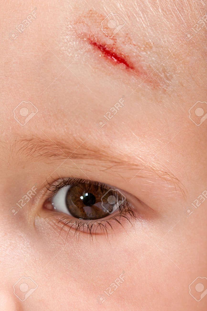 Physical injury blood wound skin human child pain - 7548867