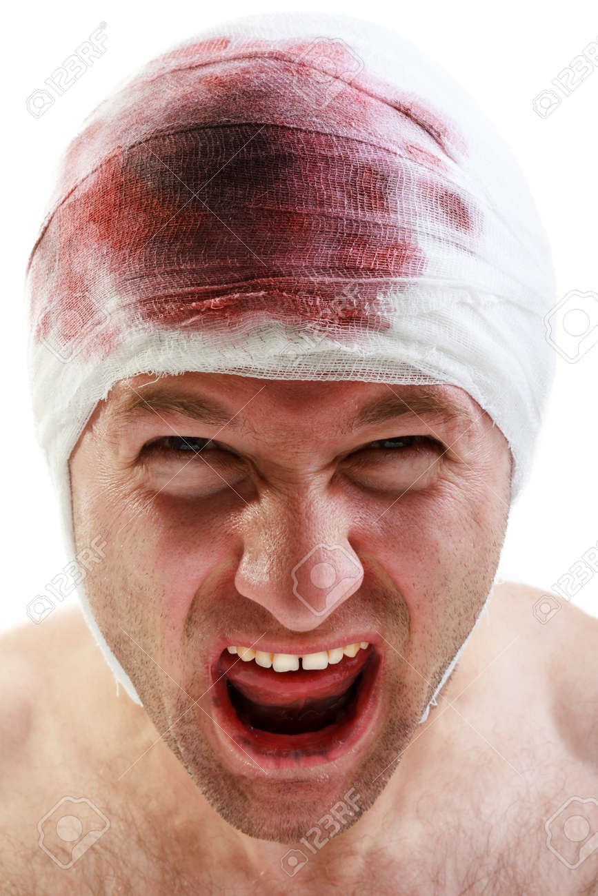 Nariz con sangre después de la conmoción cerebral