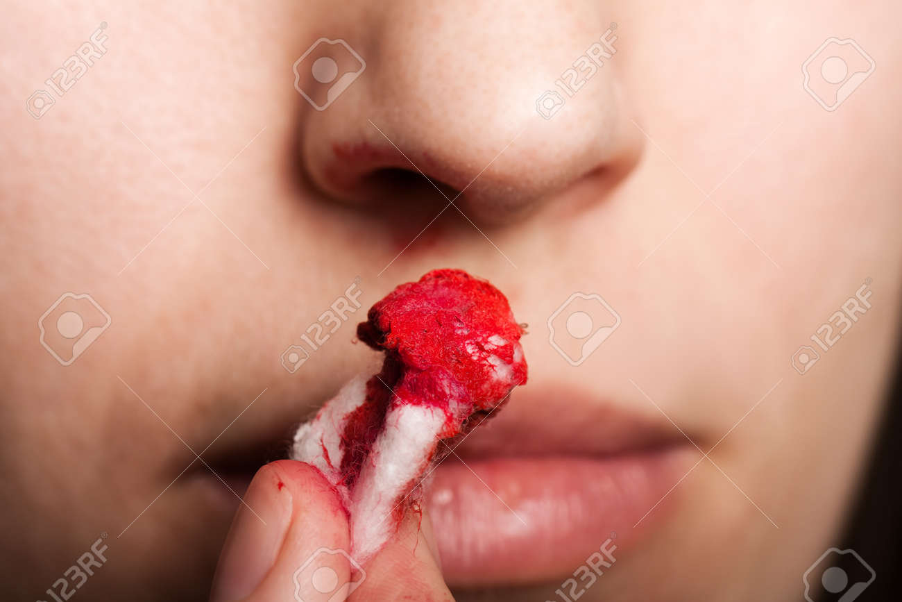 Wound nosebleed - adult human nose injury blood Stock Photo - 9015425