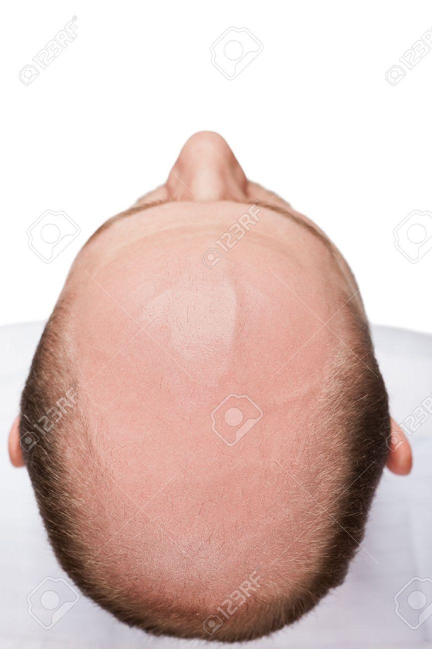 Human alopecia or hair loss - adult man bald head top view Stock Photo - 12928872