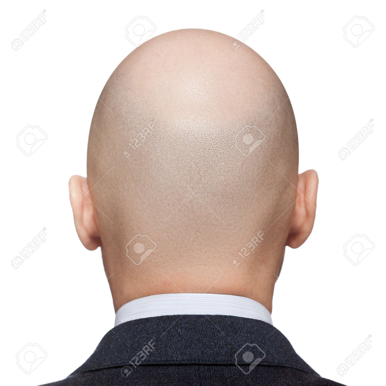 Menschliche alopezie oder haarausfall erwachsener mann glatze menschliche alopezie oder haarausfall erwachsener mann glatze hinten oder rckansicht standard bild 13175100 altavistaventures Gallery