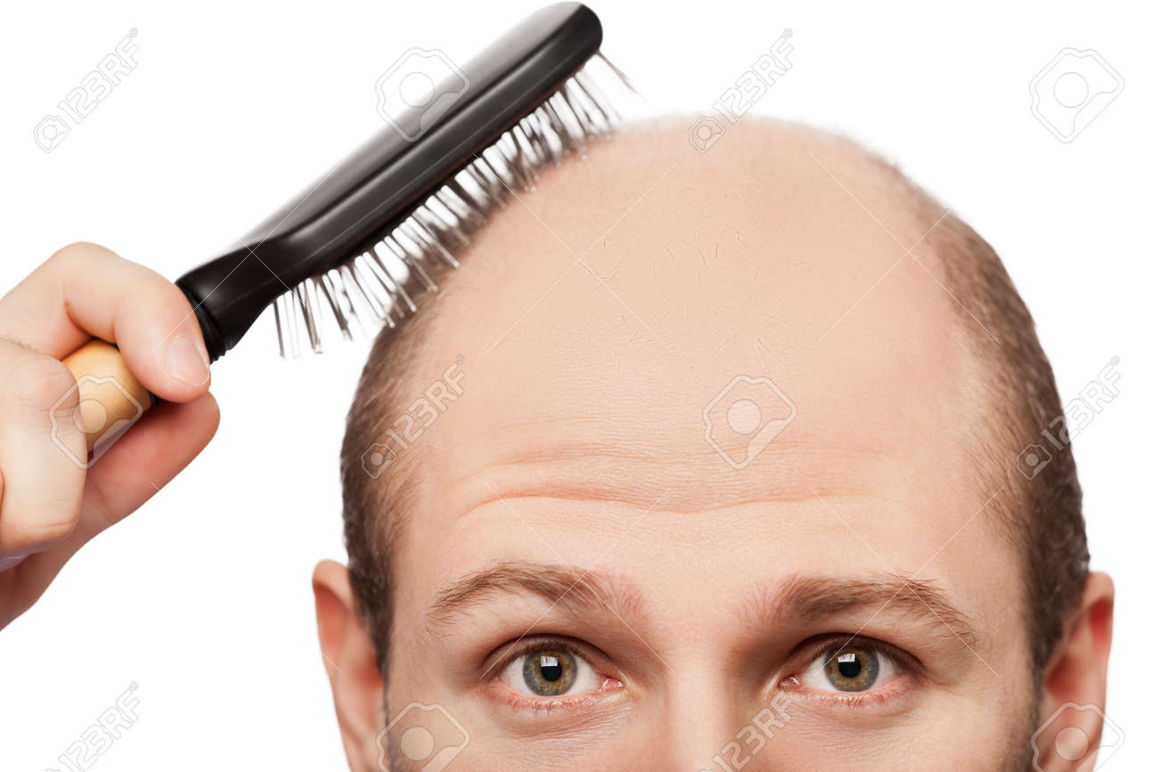 Human alopecia or hair loss - adult man hand holding comb on bald head - 13295727