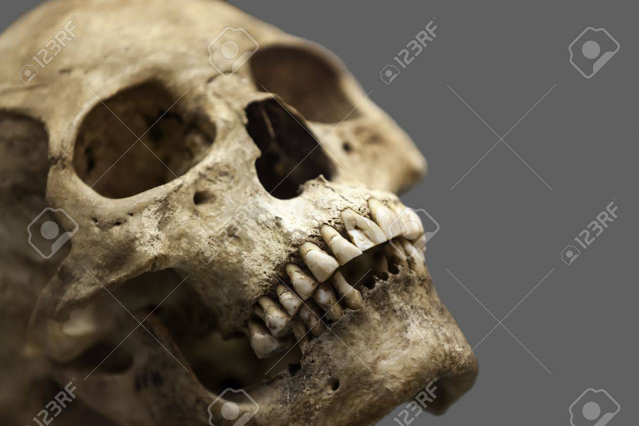 Anatomie Des Menschen - Alte Menschen Schädelknochen Lizenzfreie ...