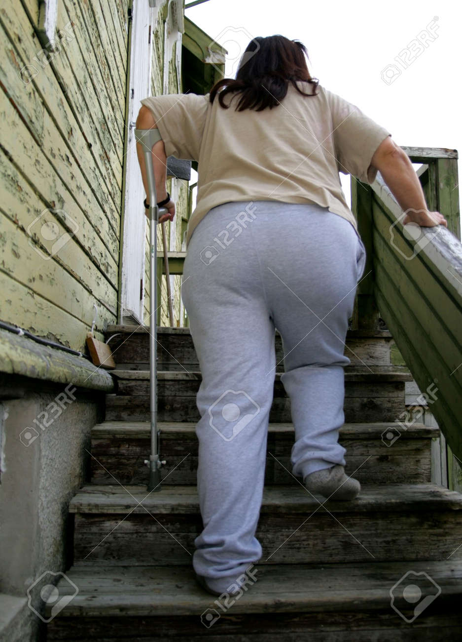Obese woman with crutch Stock Photo - 5792512