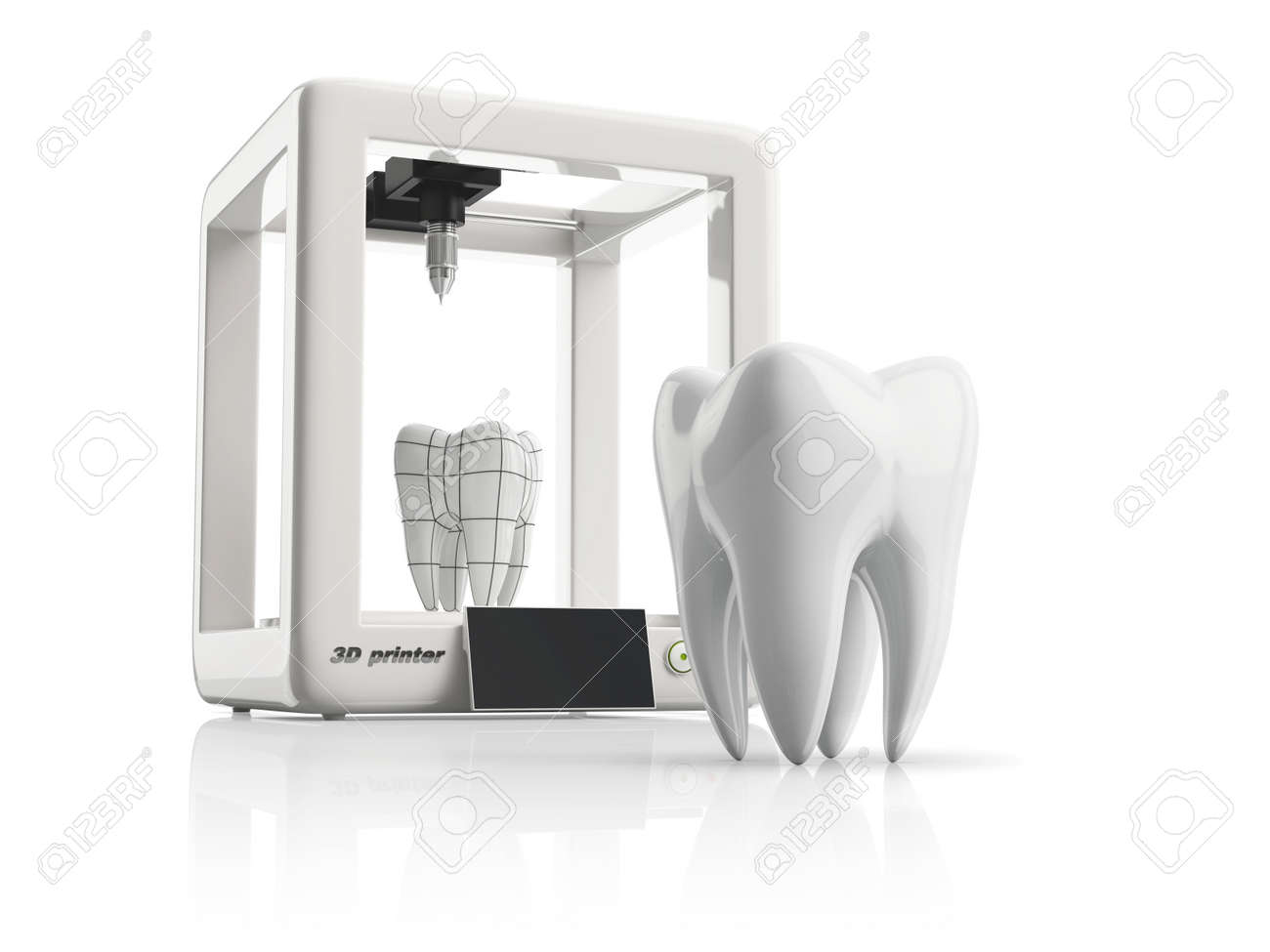 3d printer during work on the new tooth - 49937717