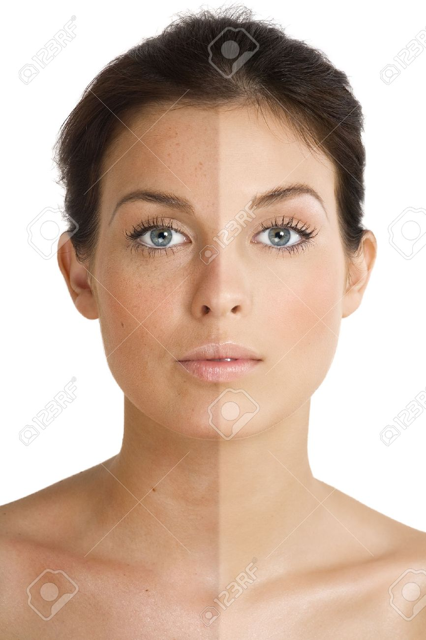 Female face divided into two parts one healthy and one UV damaged. - 38465582
