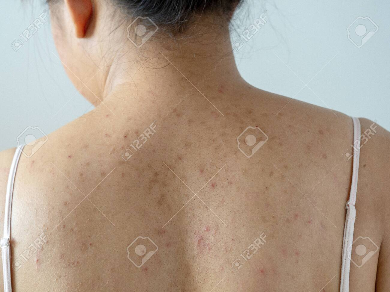 Pimple Acne And Dark Spot On Woman Dry Skin Back From Allergy Stock Photo Picture And Royalty Free Image Image 131808894