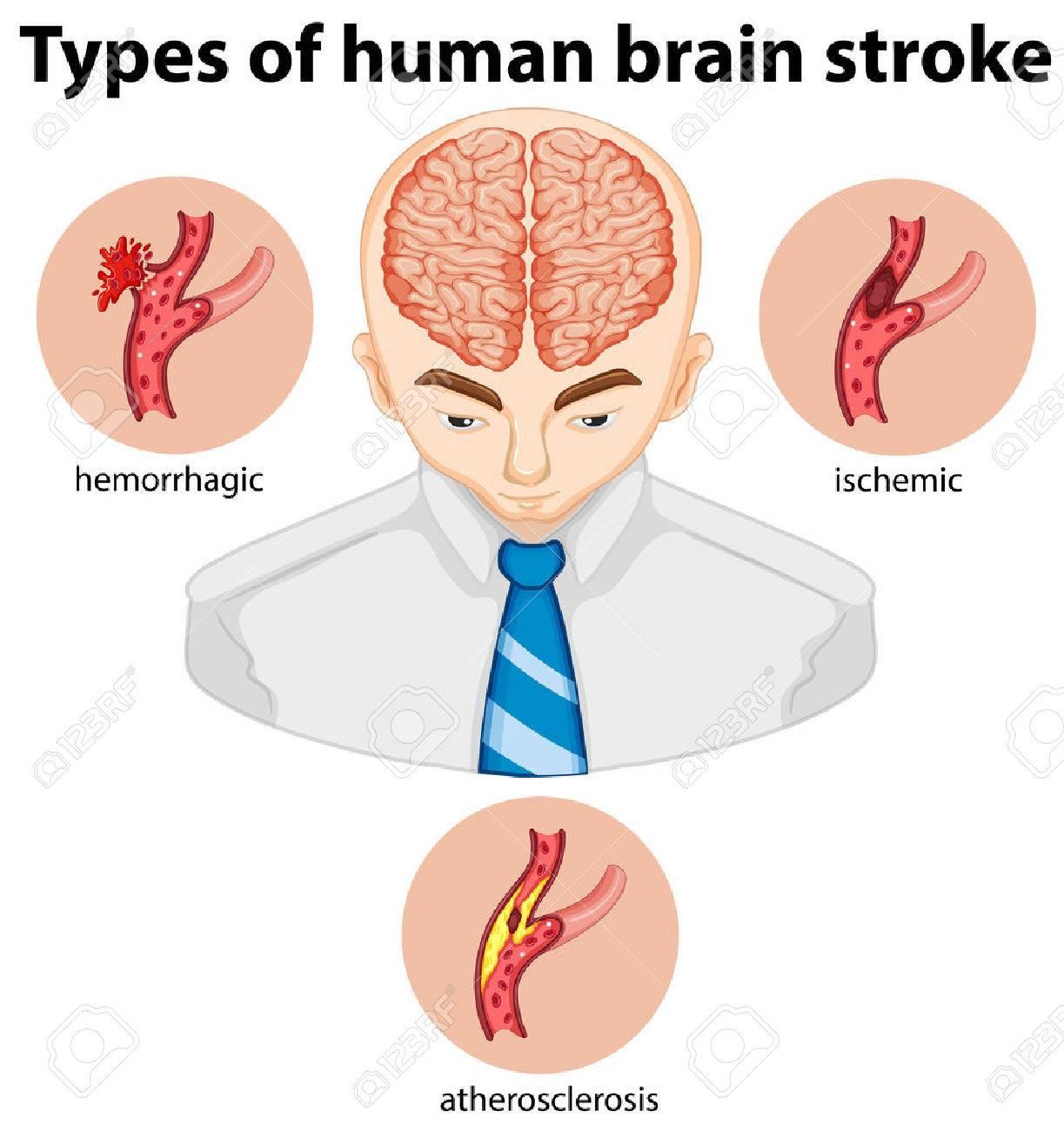 Tipos De Brian Humano Ilustración Accidente Cerebrovascular ...