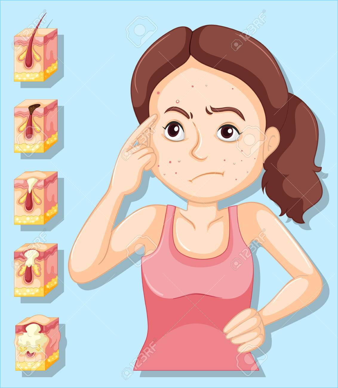 Woman and pimple problems illustration - 58834182