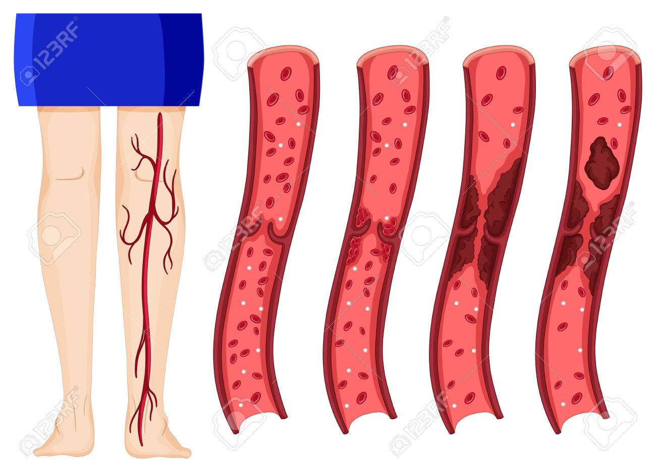 Coágulo De Sangre En Las Piernas Ilustración Humana (una Trombosis ...