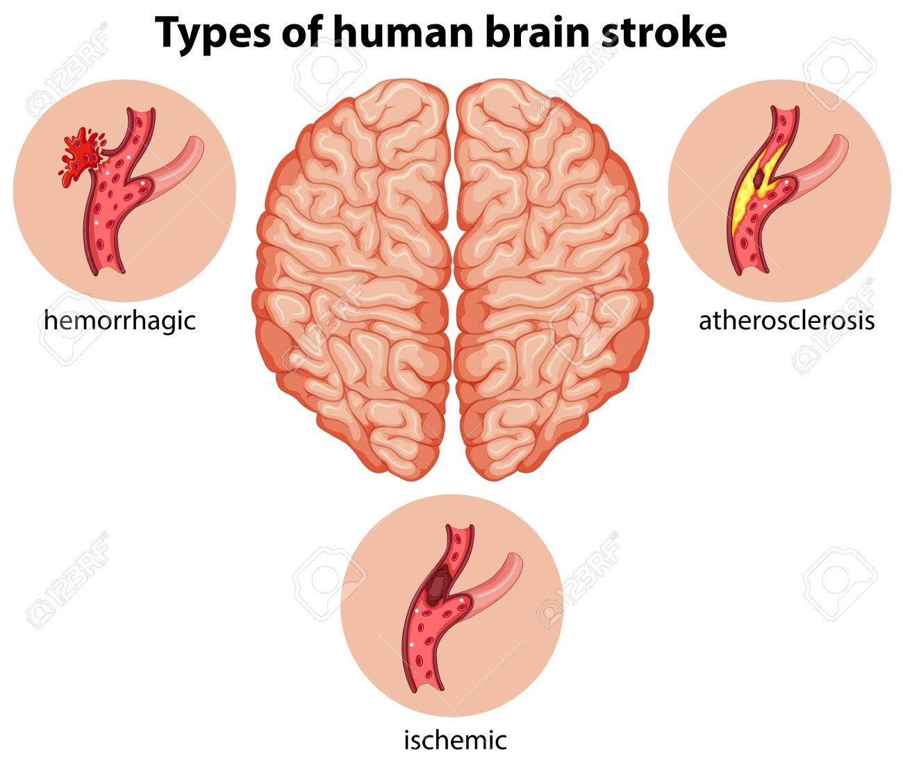 Tipos De Cerebro Humano Ilustración Accidente Cerebrovascular ...