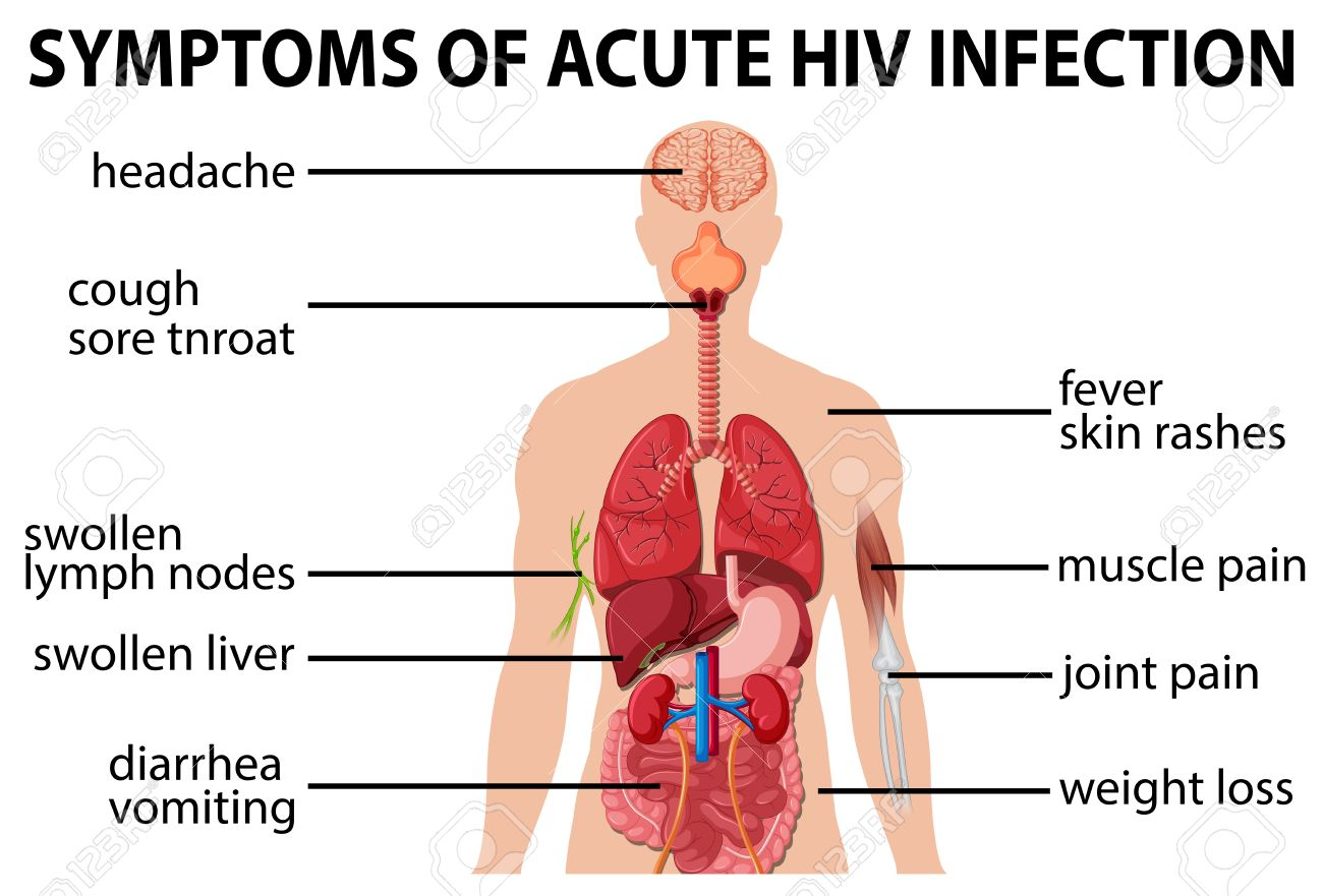 Chart Of Symtoms Of Acute HIV Infection Illustration Royalty Free ...