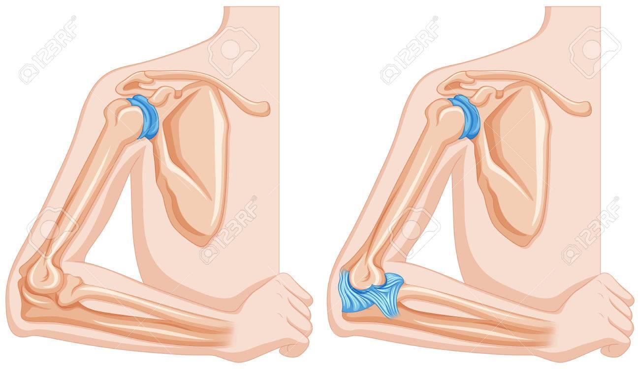 Diagrama Que Muestra La Ilustración Articulaciones Del Codo ...