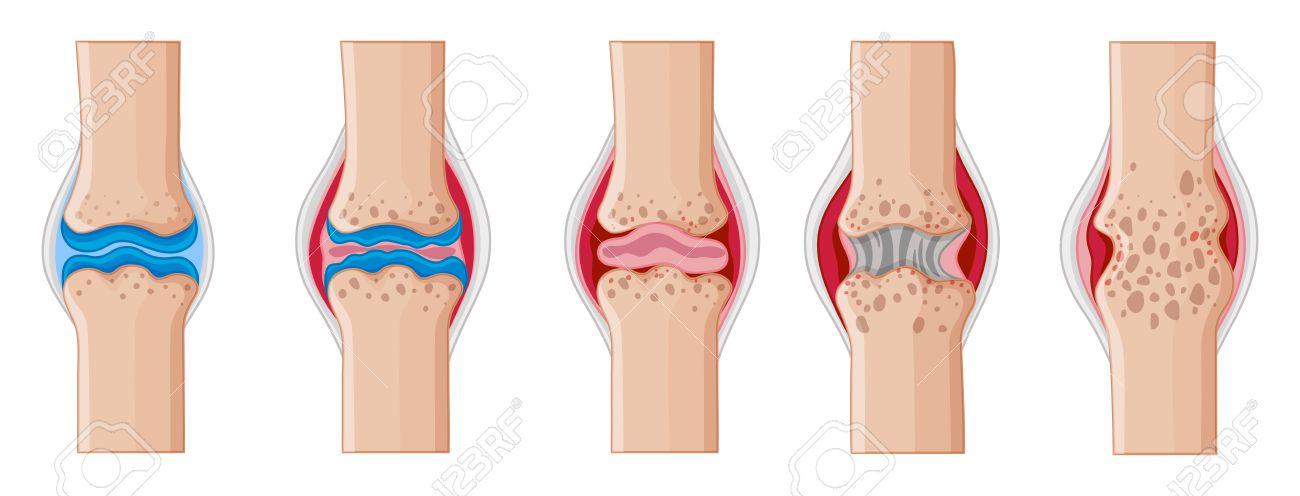La Artritis Reumatoide En La Ilustración De Las Articulaciones ...