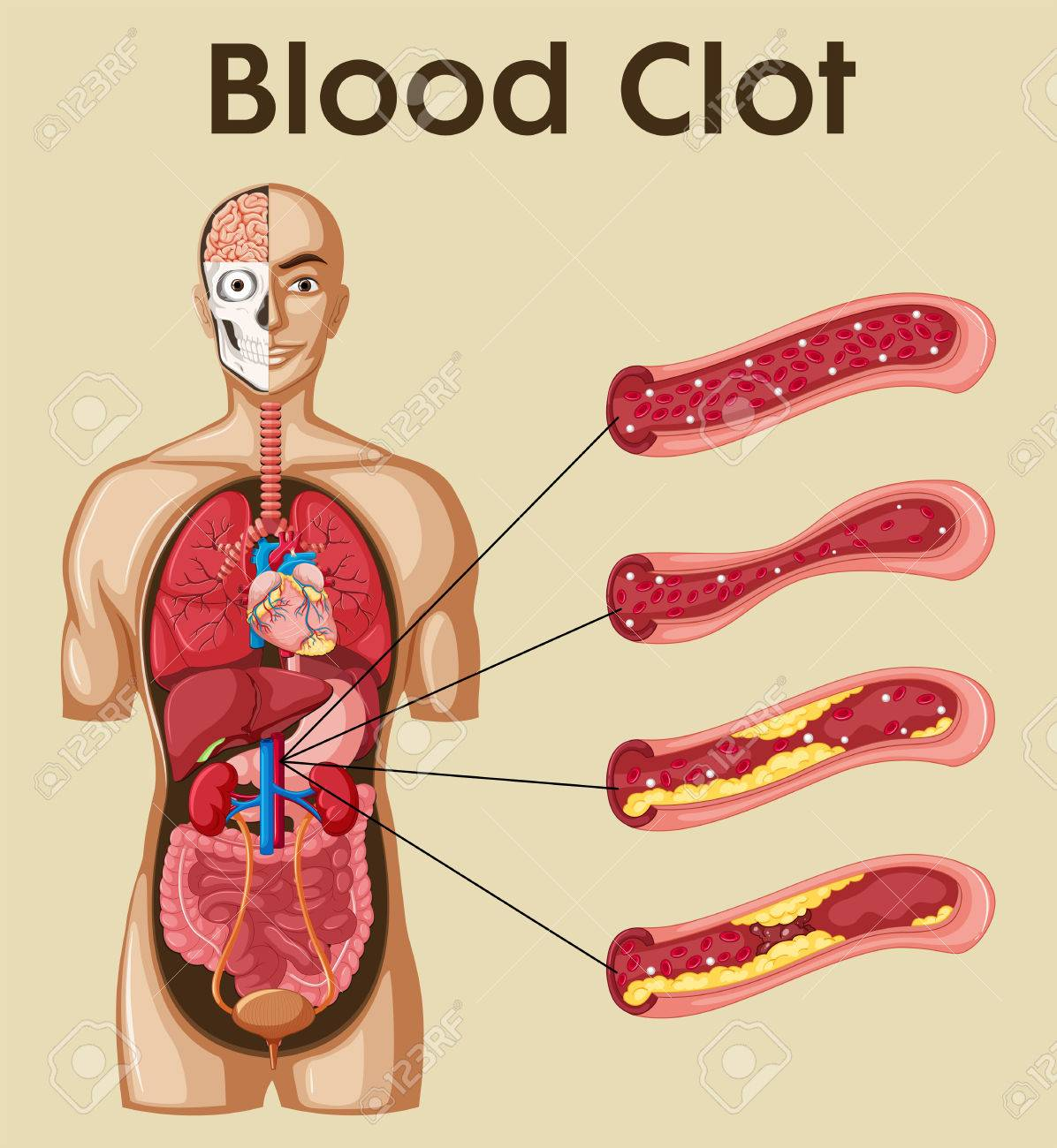 Diagram Showing Blood Clot In Human Illustration Royalty Free